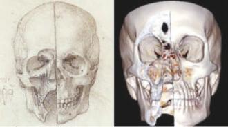 达芬奇手绘的头骨解剖图数字影像技术扫描的头骨解剖图